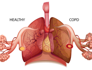copd silica dust